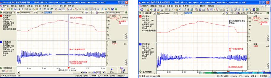 大鼠血压系统、无创血压分析系统